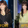 Marie_osmond_before_after_300