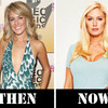 Heidi-montag-then-now_300